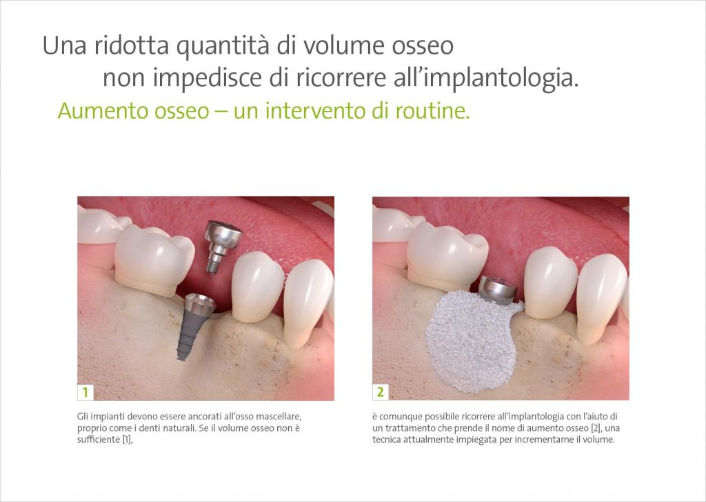 chirurgia_rigenerativa_2